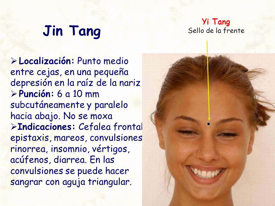 Yi Tang Sello de la frente. Jin Tang. Localización: Punto medio entre cejas, en una pequeña depresión en la raíz de la nariz.