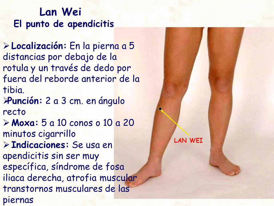 Lan Wei El punto de apendicitis