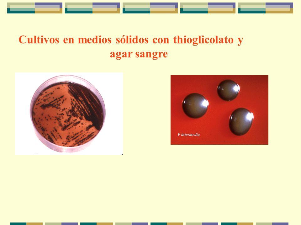 Cultivos en medios sólidos con thioglicolato y