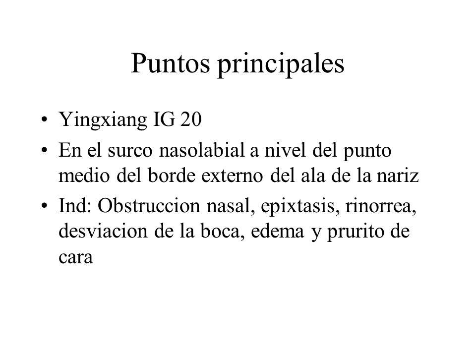 Puntos principales Yingxiang IG 20