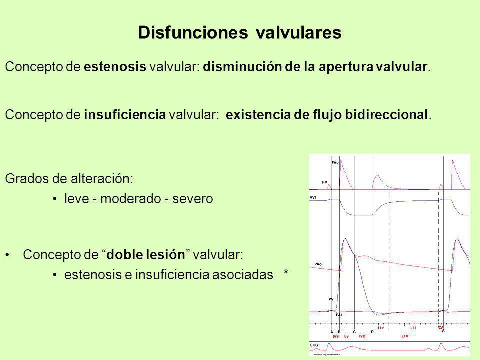 Disfunciones valvulares