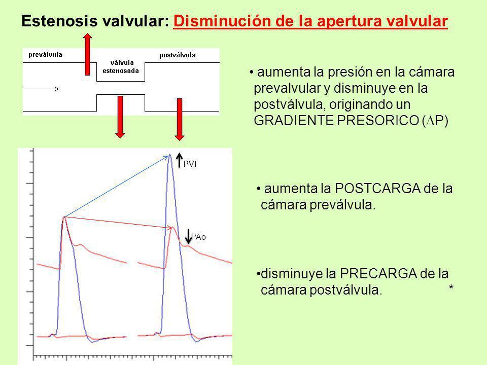 Estenosis valvular: Disminución de la apertura valvular