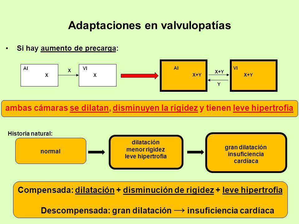 Adaptaciones en valvulopatías