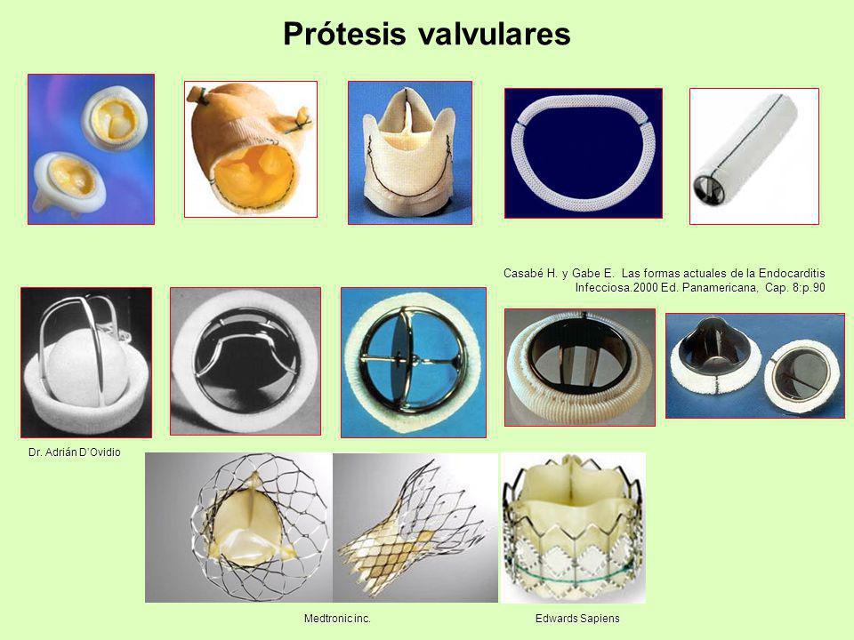 Prótesis valvulares Casabé H. y Gabe E. Las formas actuales de la Endocarditis Infecciosa.2000 Ed. Panamericana, Cap. 8:p.90.