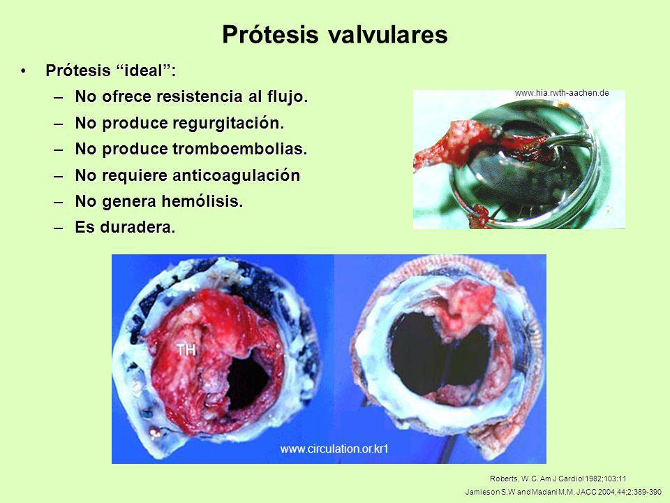 Prótesis valvulares Prótesis ideal : No ofrece resistencia al flujo.