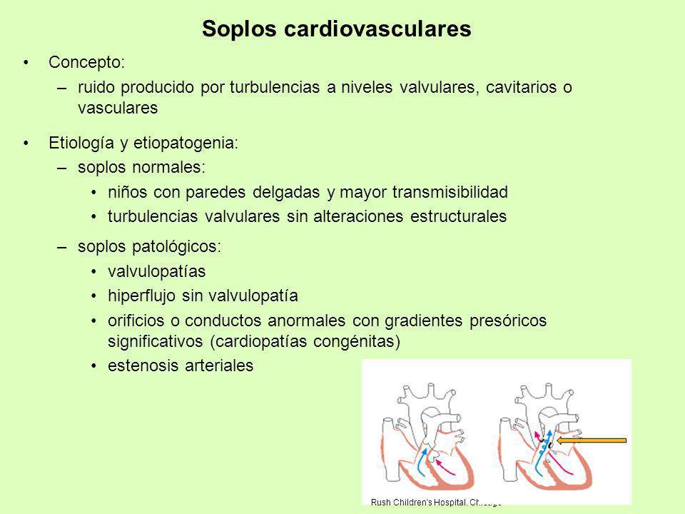 Soplos cardiovasculares