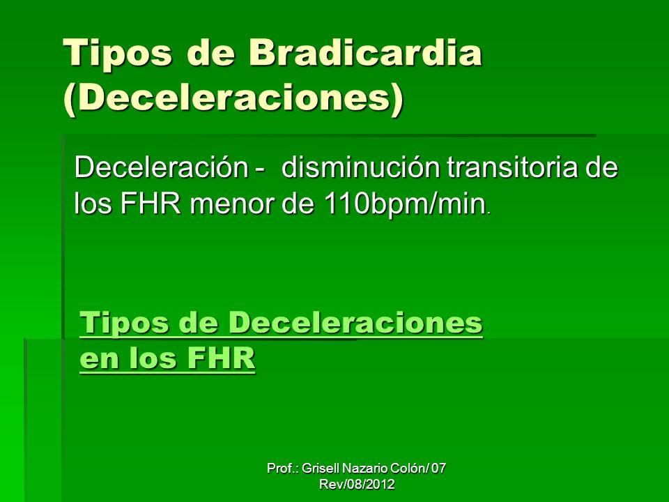 Tipos de Deceleraciones en los FHR