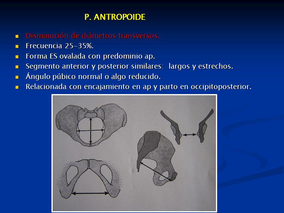 P. ANTROPOIDE Disminución de diámetros transversos. Frecuencia 25-35%.