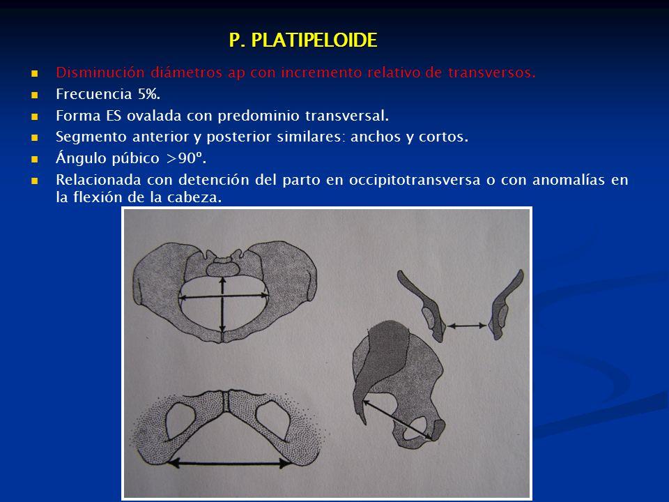 P. PLATIPELOIDE Disminución diámetros ap con incremento relativo de transversos. Frecuencia 5%. Forma ES ovalada con predominio transversal.