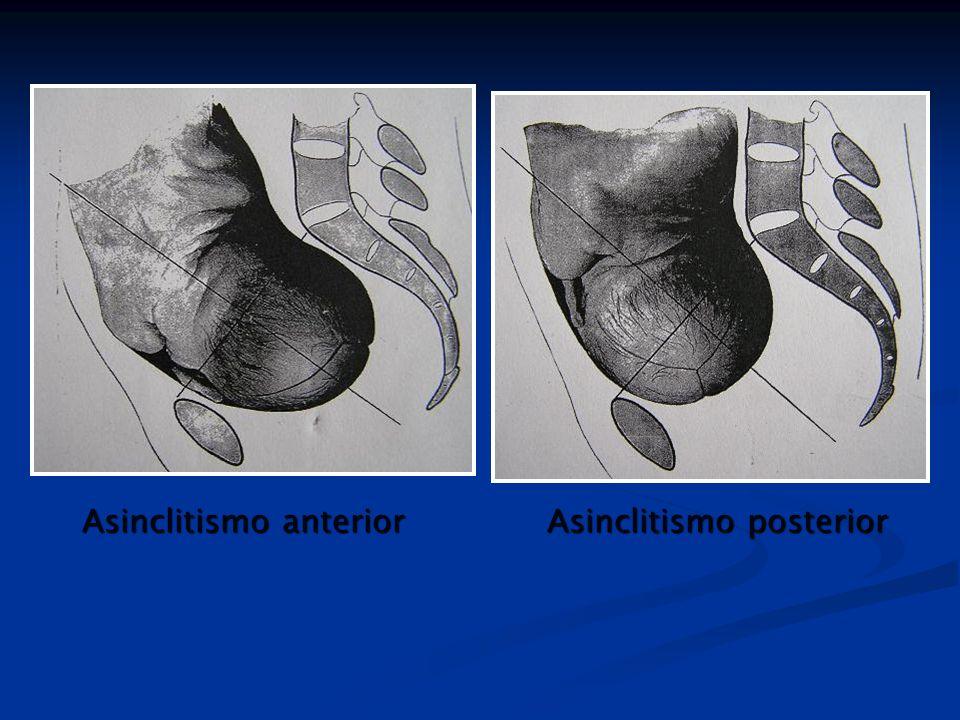 Asinclitismo anterior Asinclitismo posterior
