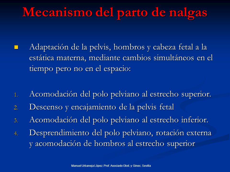 Mecanismo del parto de nalgas