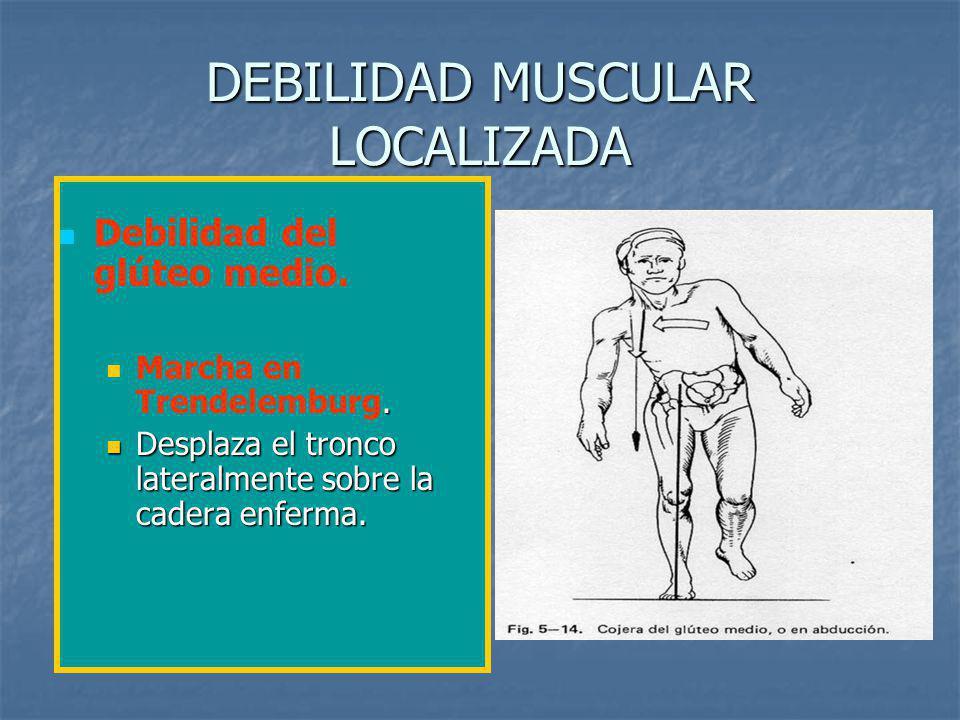 DEBILIDAD MUSCULAR LOCALIZADA