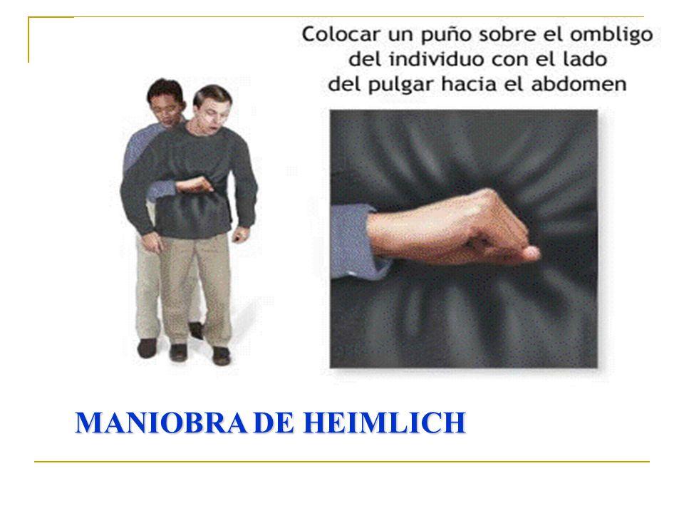 MANIOBRA DE HEIMLICH