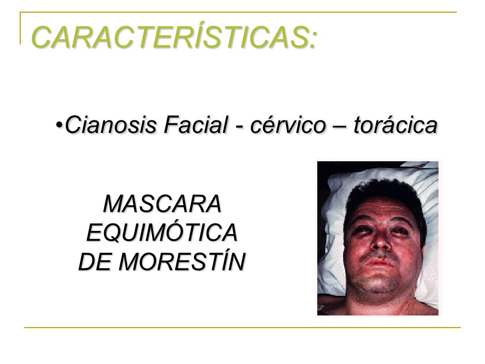 Cianosis Facial - cérvico – torácica