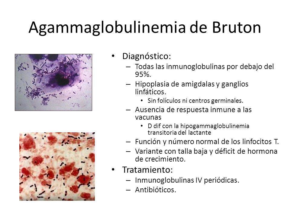 Agammaglobulinemia de Bruton