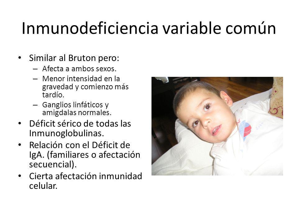 Inmunodeficiencia variable común