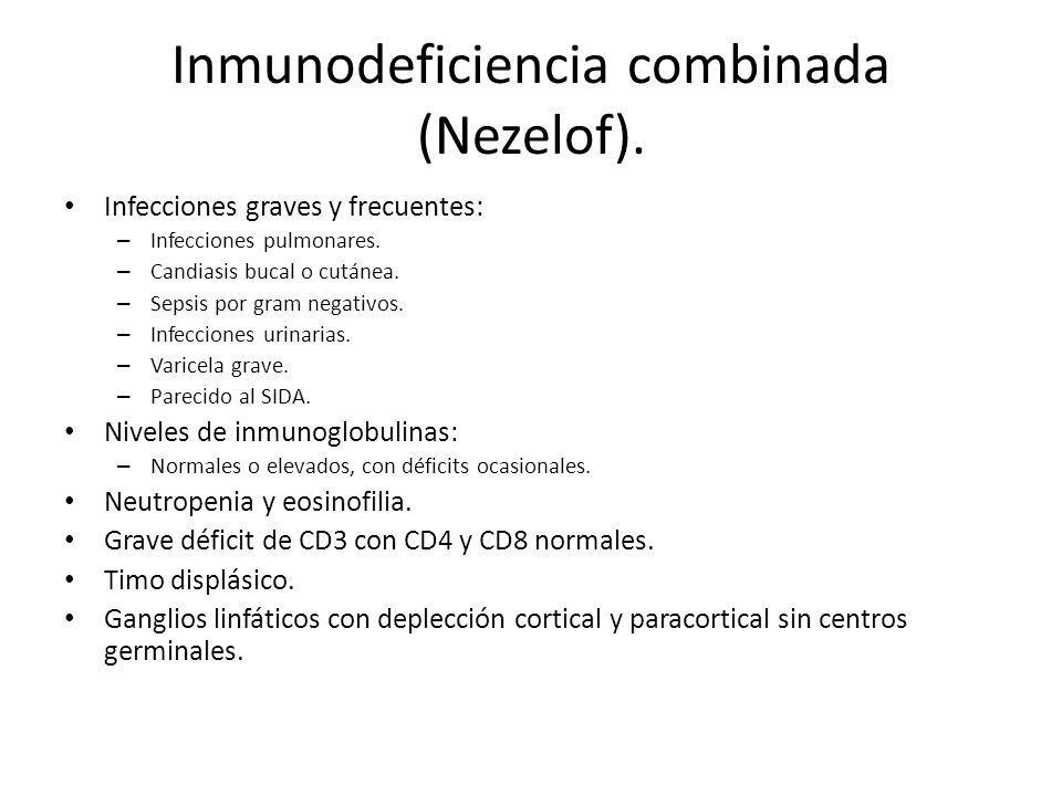 Inmunodeficiencia combinada (Nezelof).