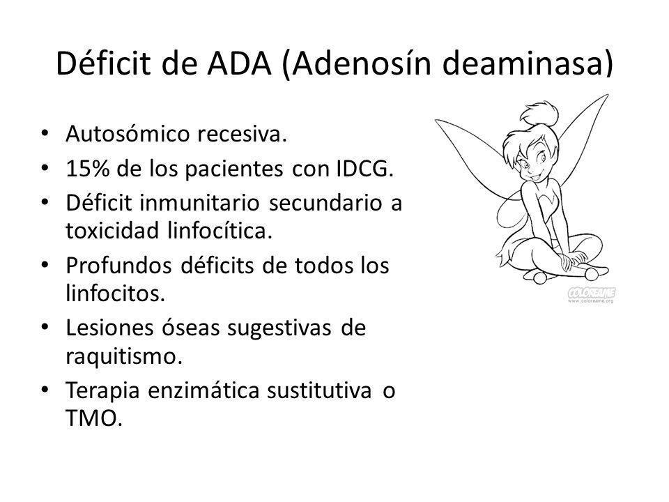 Déficit de ADA (Adenosín deaminasa)