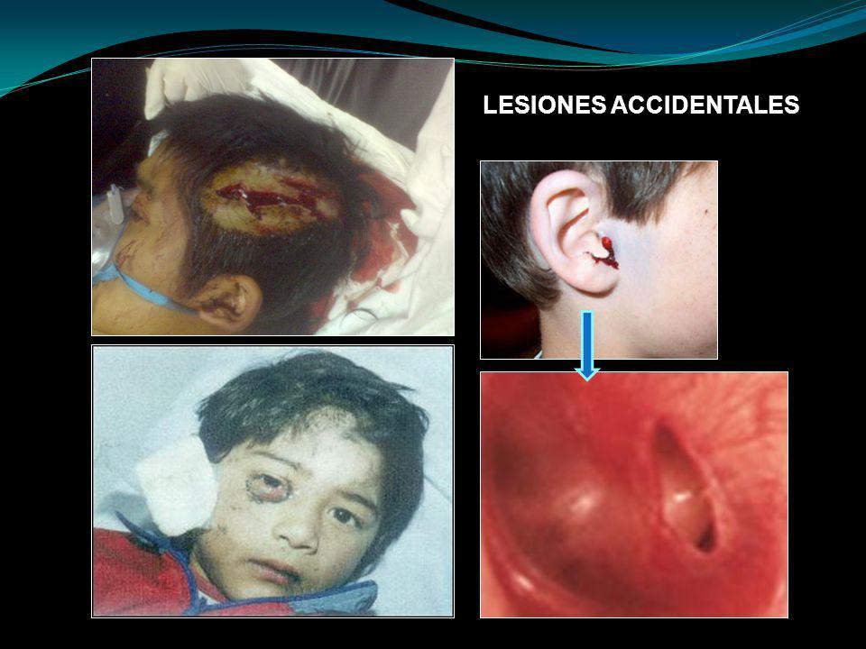LESIONES ACCIDENTALES