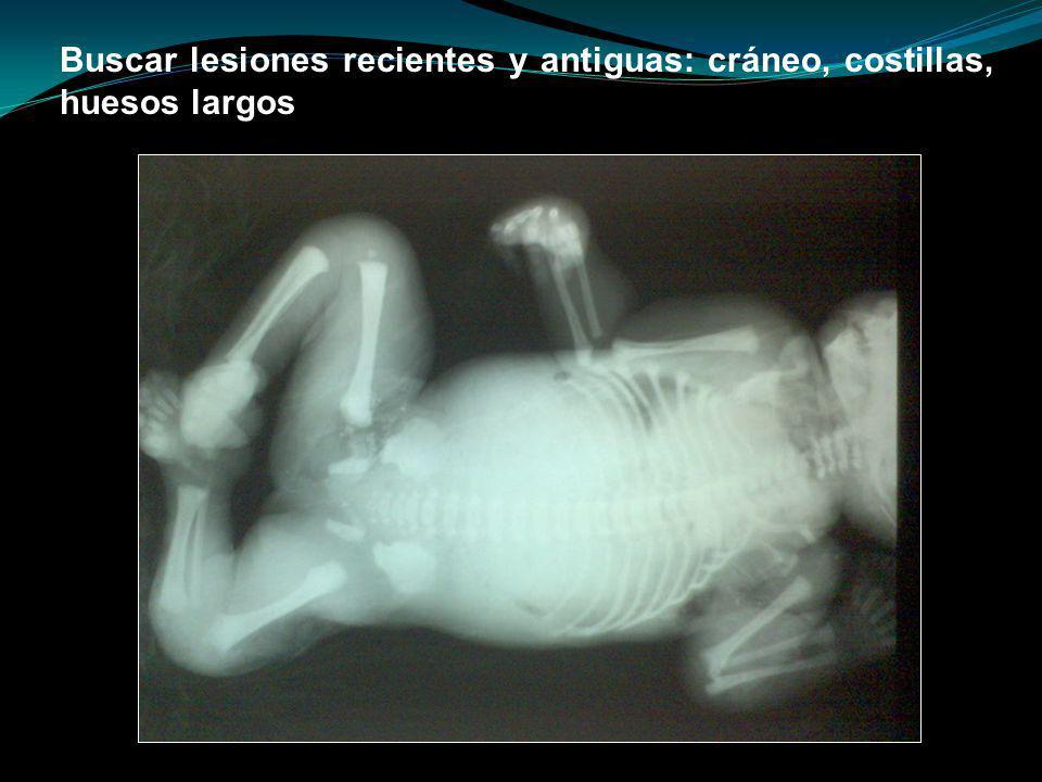 Buscar lesiones recientes y antiguas: cráneo, costillas, huesos largos