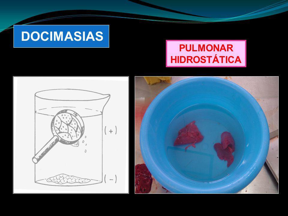 DOCIMASIAS PULMONAR HIDROSTÁTICA