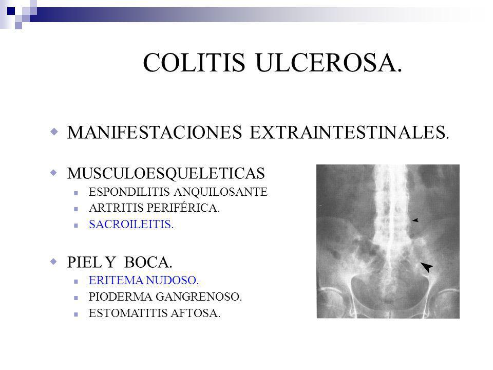 COLITIS ULCEROSA. MANIFESTACIONES EXTRAINTESTINALES.