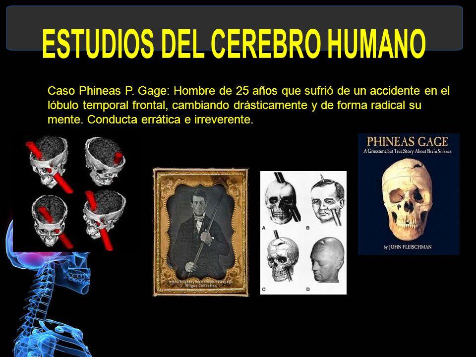 ESTUDIOS DEL CEREBRO HUMANO
