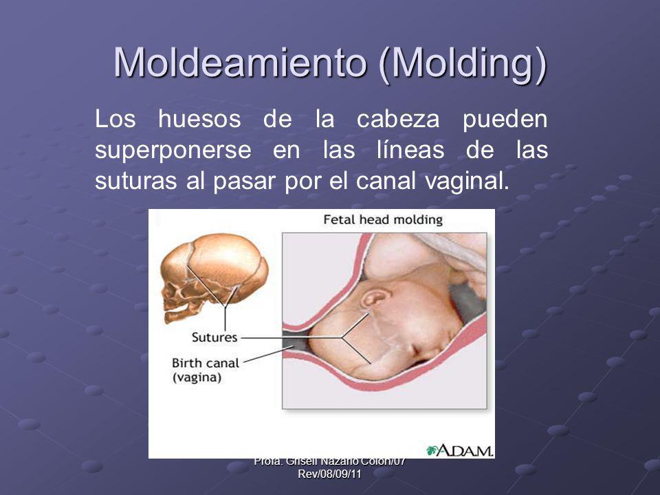 Moldeamiento (Molding)