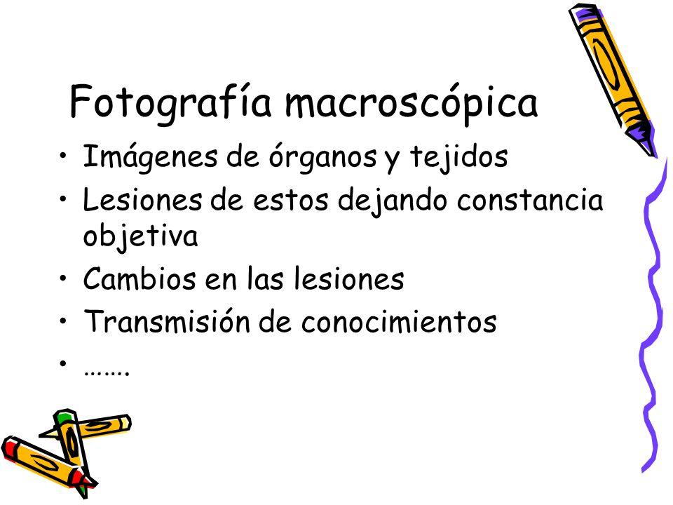 Fotografía macroscópica