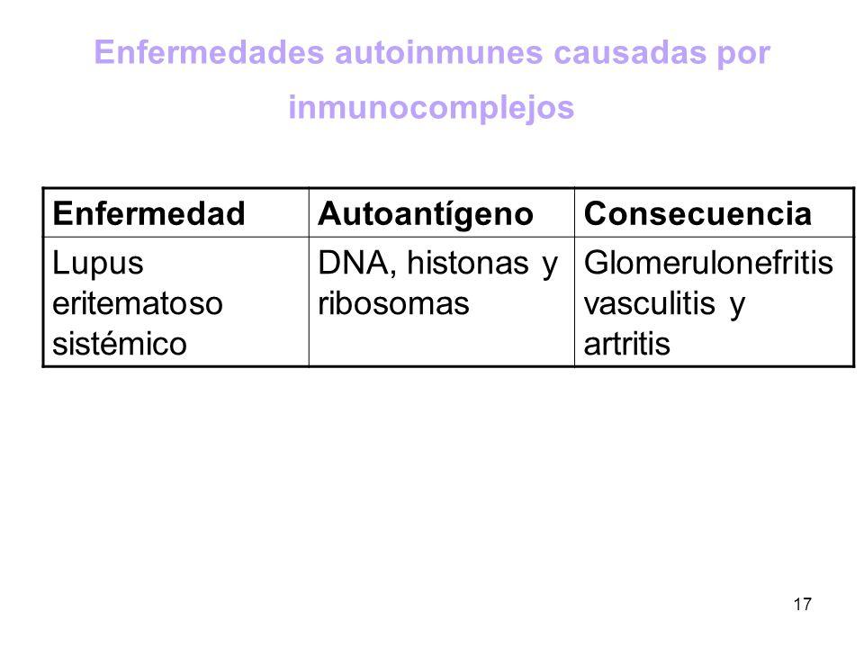 Enfermedades autoinmunes causadas por inmunocomplejos