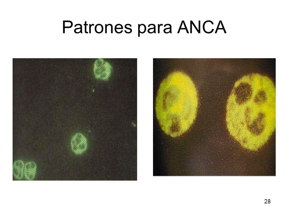 Patrones para ANCA