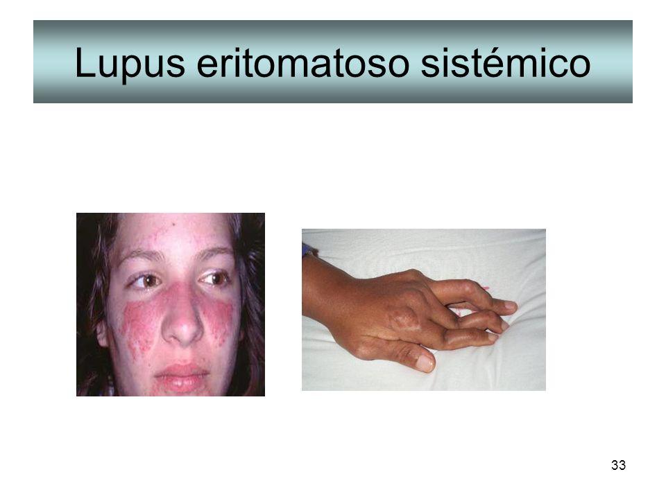 Lupus eritomatoso sistémico