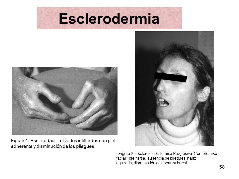 Esclerodermia Figura 1. Esclerodactilia. Dedos infiltrados con piel