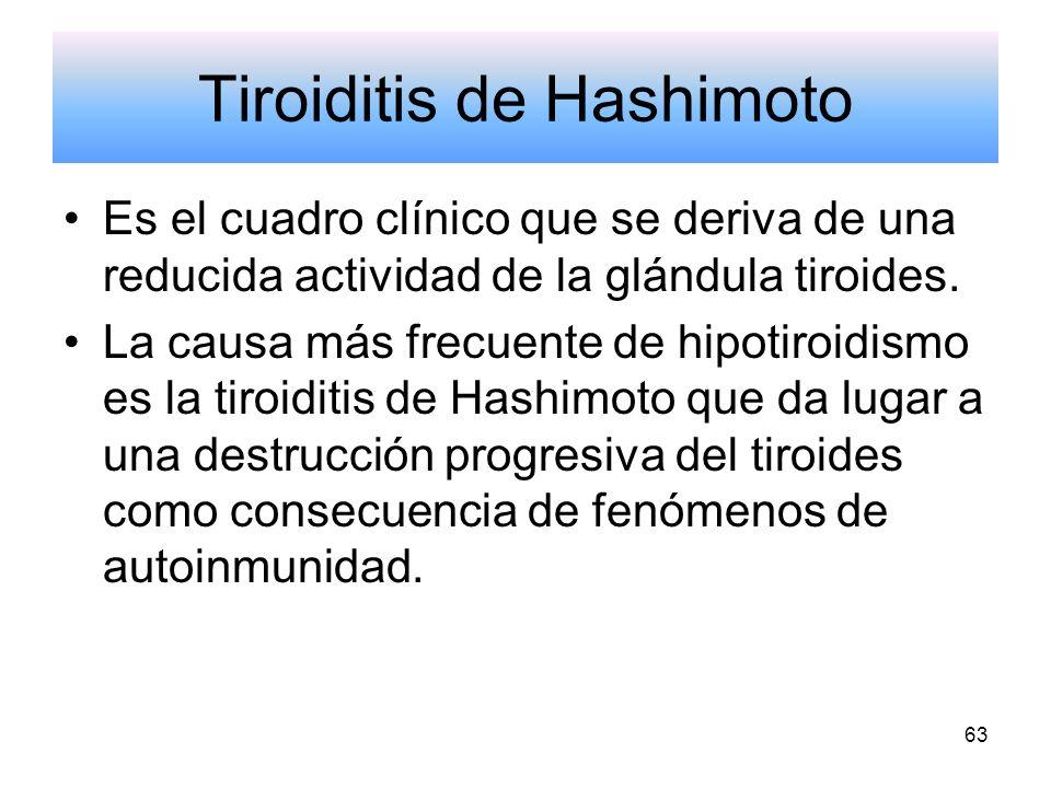 Tiroiditis de Hashimoto