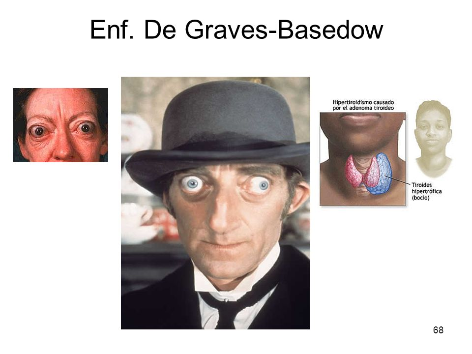 Enf. De Graves-Basedow