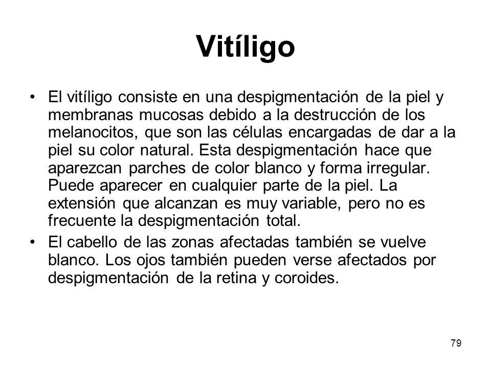 Vitíligo