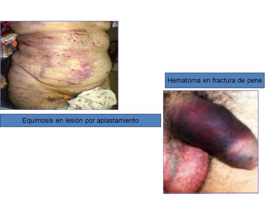 Hematoma en fractura de pene