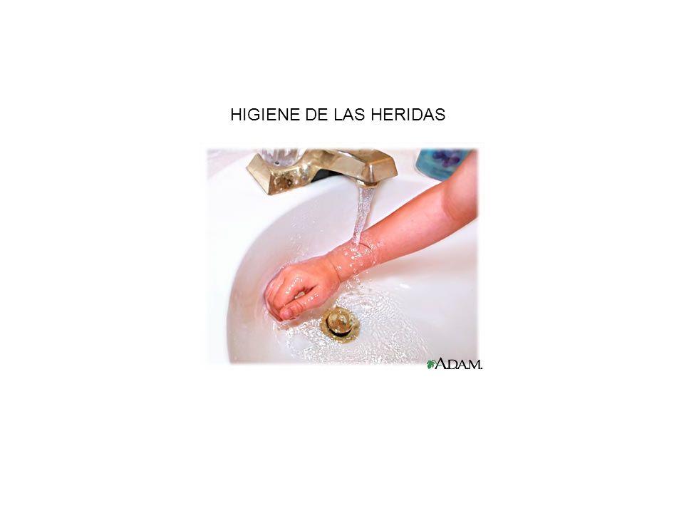 HIGIENE DE LAS HERIDAS