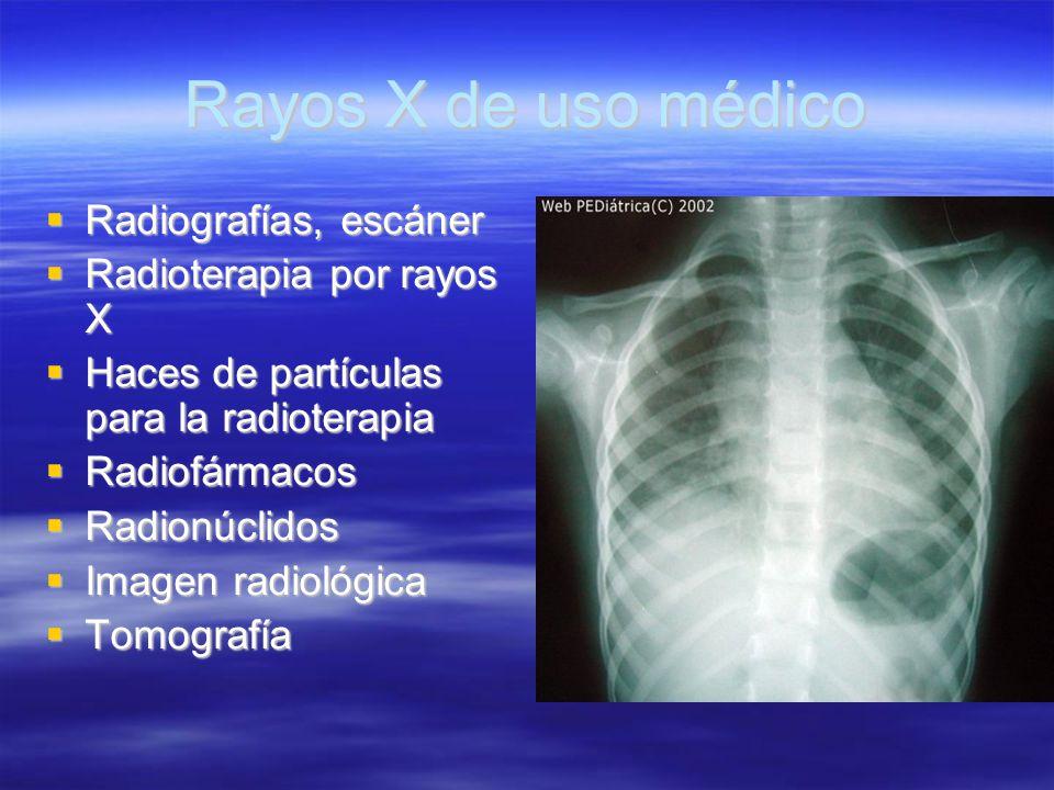 Rayos X de uso médico Radiografías, escáner Radioterapia por rayos X