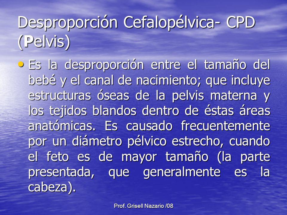 Desproporción Cefalopélvica- CPD (Pelvis)