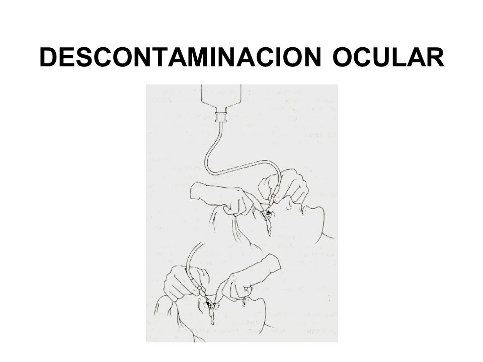 DESCONTAMINACION OCULAR