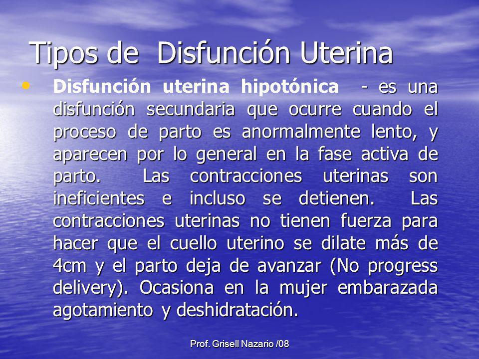 Tipos de Disfunción Uterina