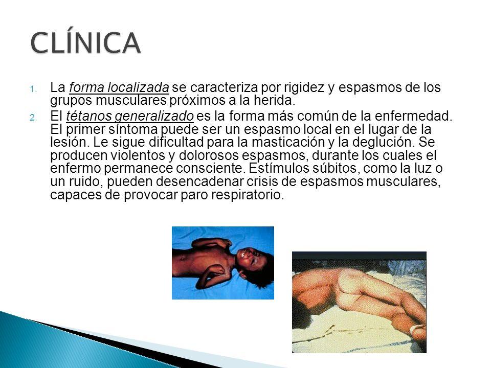 CLÍNICA La forma localizada se caracteriza por rigidez y espasmos de los grupos musculares próximos a la herida.