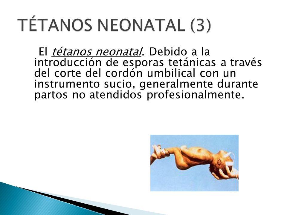 TÉTANOS NEONATAL (3)