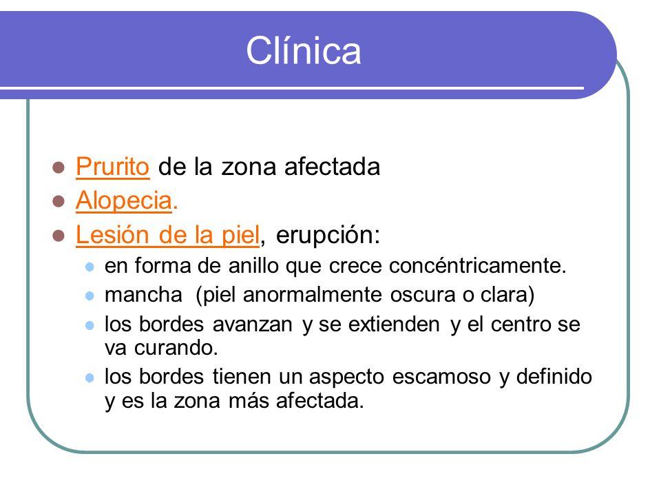 Clínica Prurito de la zona afectada Alopecia.