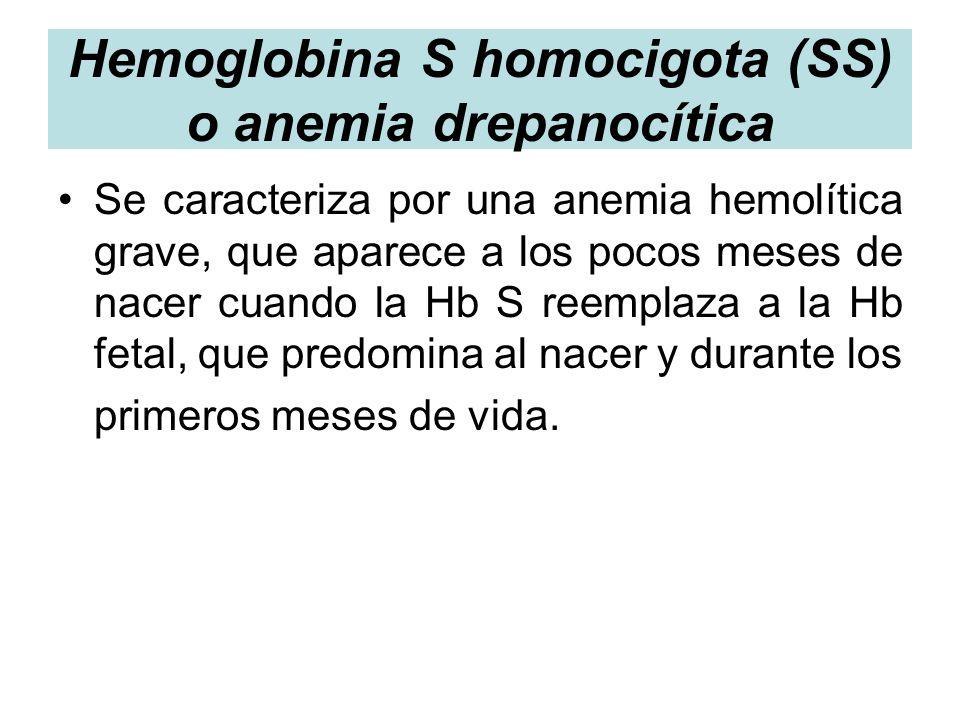 Hemoglobina S homocigota (SS) o anemia drepanocítica