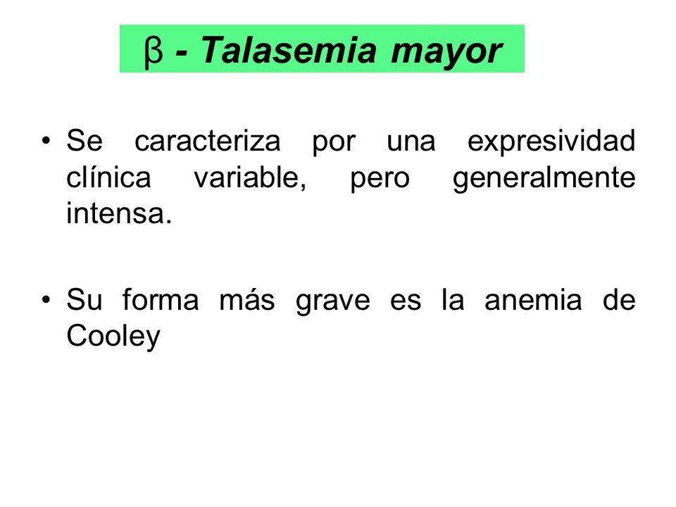 β - Talasemia mayor Se caracteriza por una expresividad clínica variable, pero generalmente intensa.