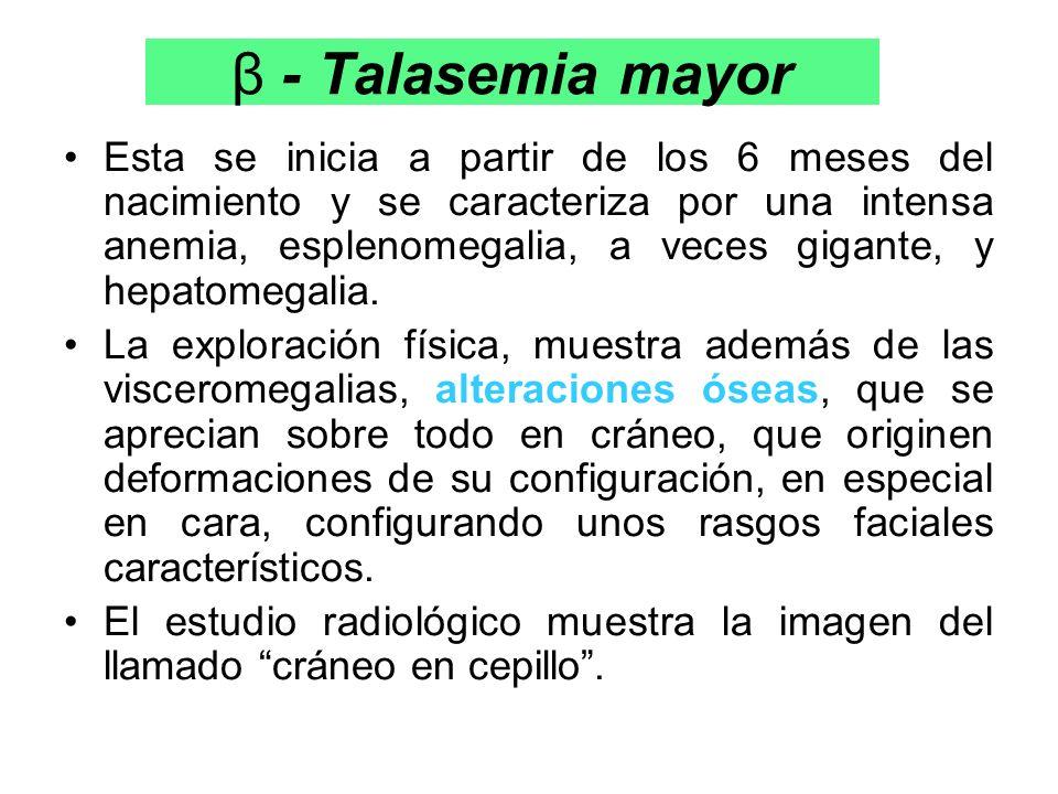 β - Talasemia mayor