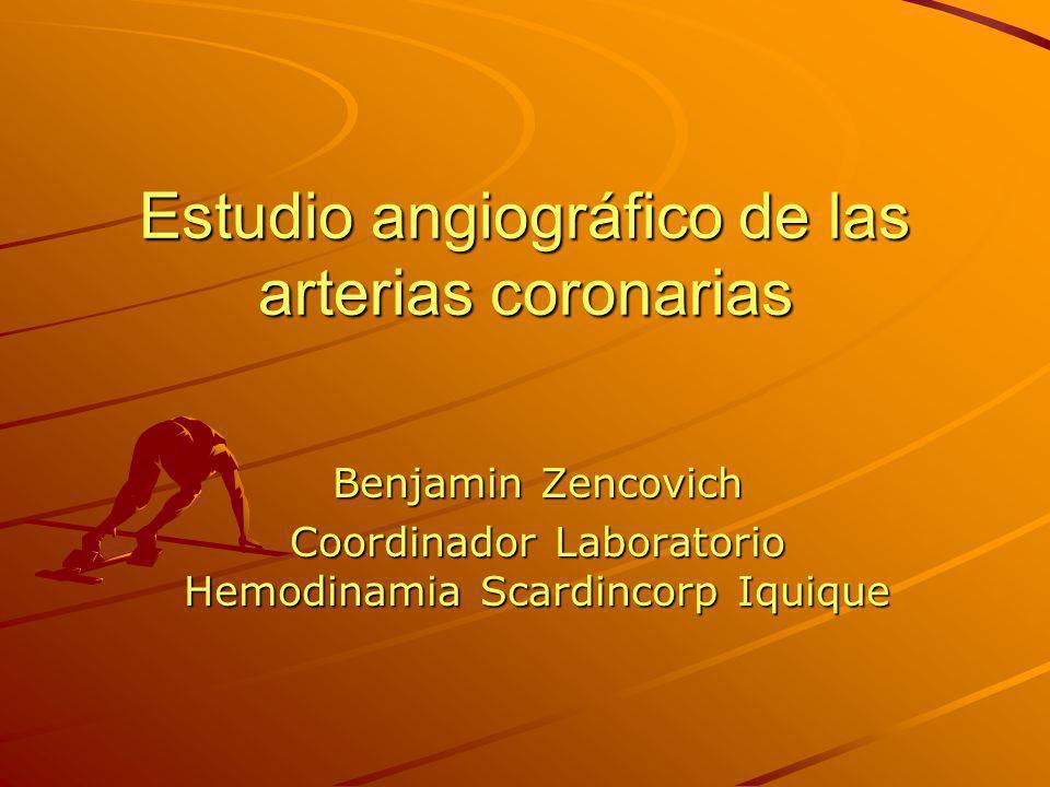 Estudio angiográfico de las arterias coronarias