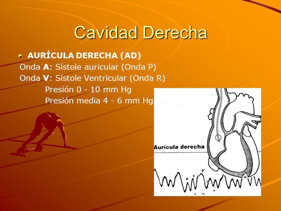 Cavidad Derecha AURÍCULA DERECHA (AD)